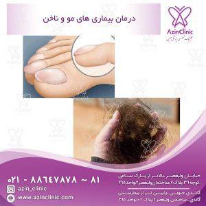درمان بیماری های مو و ناخن